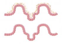 intestino flora